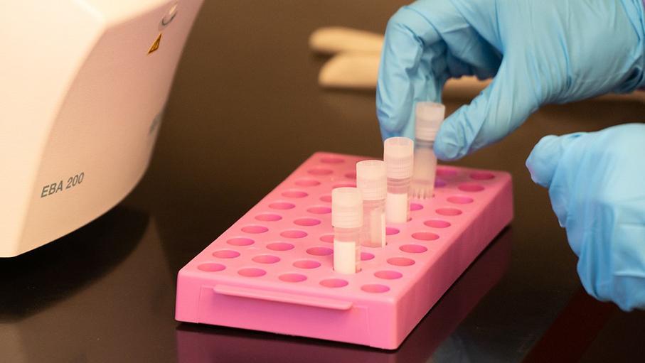serology antibody test tubes